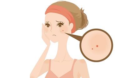 臉上長了痘痘的女人繪圖